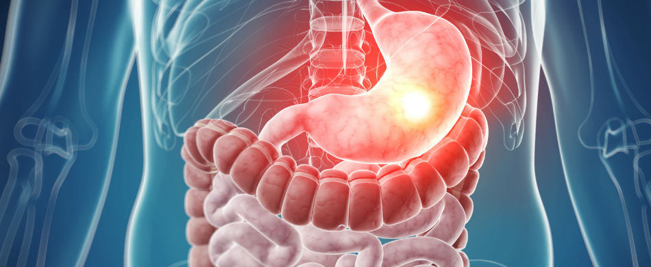 Digestive diseases – an overview